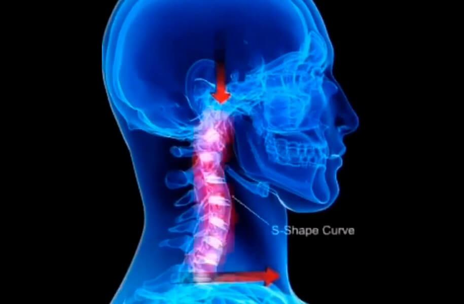 Esta lesão também é conhecida como síndrome do chicote.