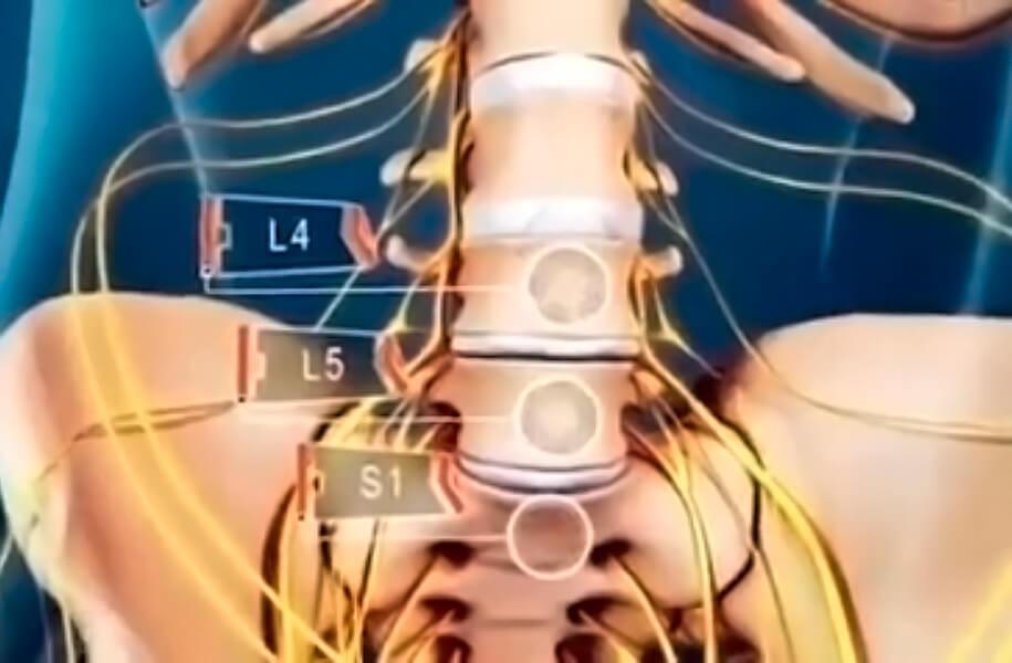 O que é dor ciática?