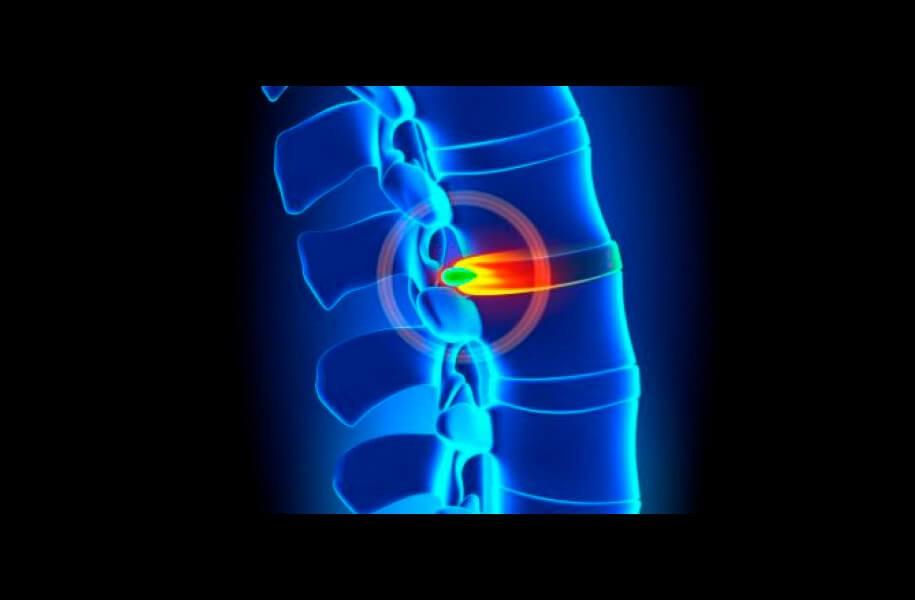 O que é subluxação vertebral