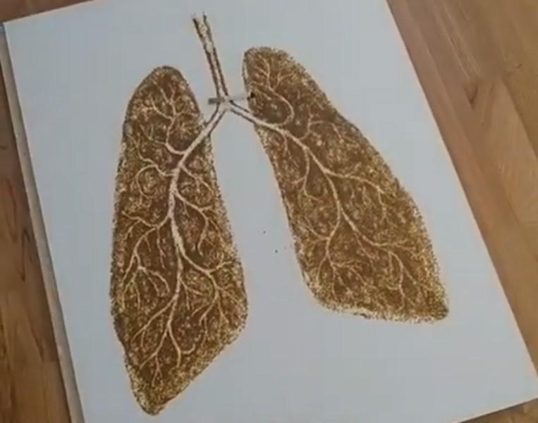 O desenvolvimento da lombalgia é associado à história de tabagismo e hipertensão, segundo o estudo.